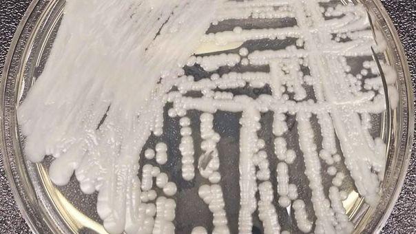 «Παγκόσμια απειλή» ο θανατηφόρος μύκητας που εξαπλώνεται σε όλον τον κόσμο