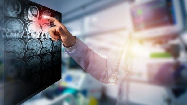 Ο κορωνοϊός συσχετίζεται με ισχαιμικά αγγειακά εγκεφαλικά επεισόδια
